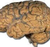 Von http://lbc.nimh.nih.gov/images/brain.jpg (found on page http://lbc.nimh.nih.gov/osites.html), Gemeinfrei, https://commons.wikimedia.org/w/index.php?curid=2448409